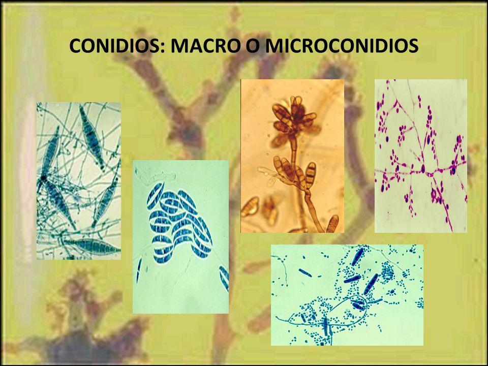 CONIDIOS: MACRO O MICROCONIDIOS