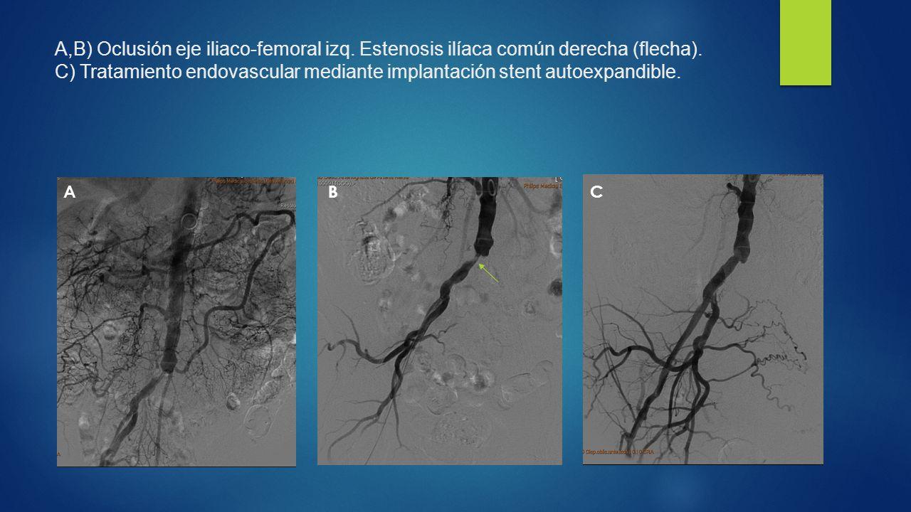 A,B) Oclusión eje iliaco-femoral izq