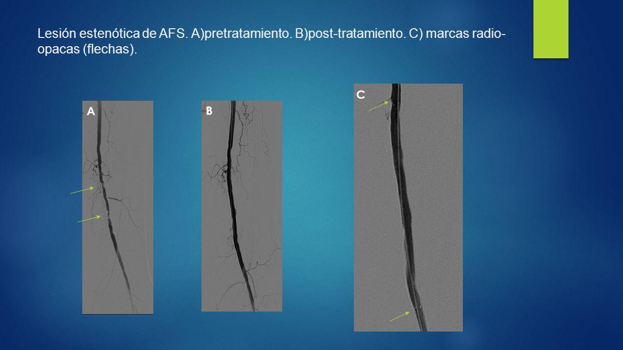 Lesión estenótica de AFS. A)pretratamiento. B)post-tratamiento
