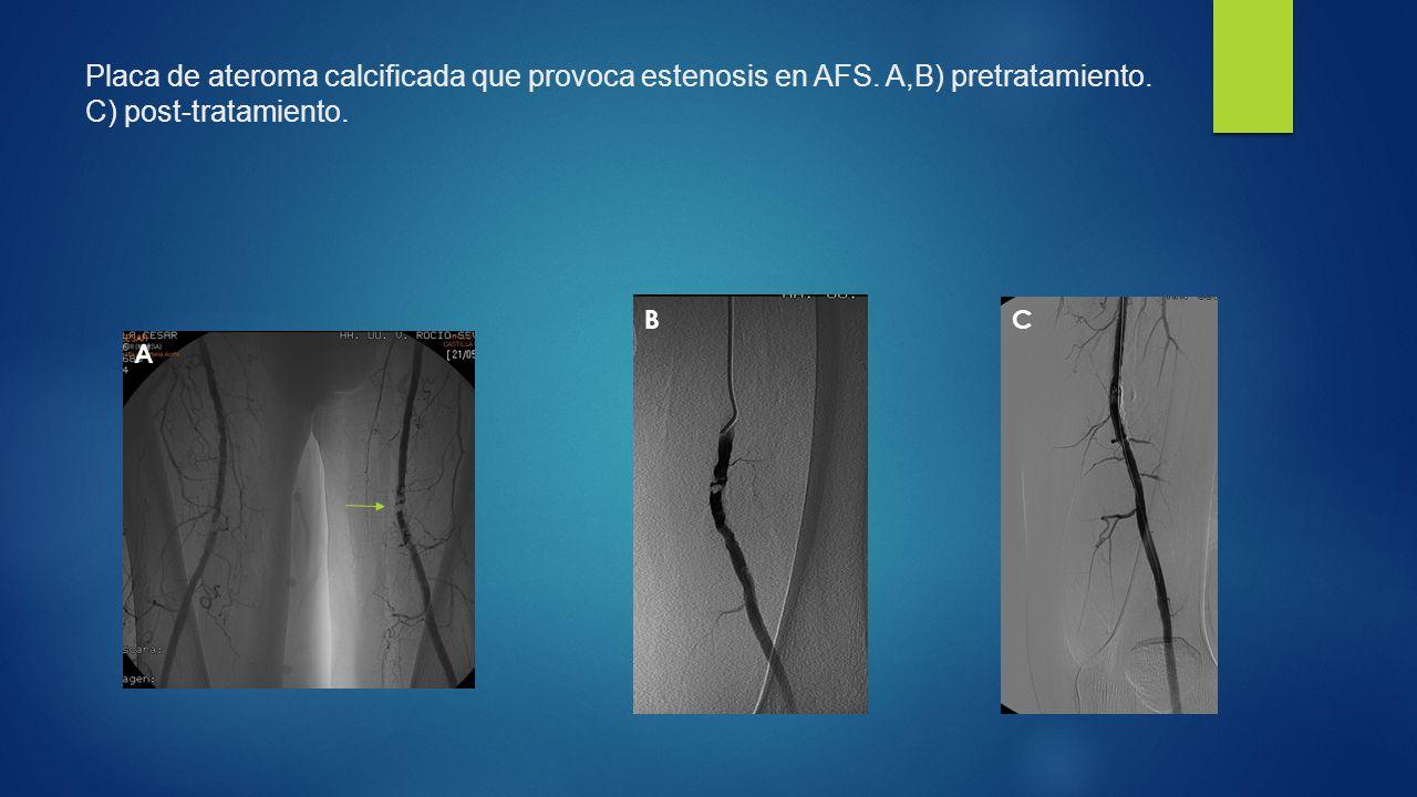 Placa de ateroma calcificada que provoca estenosis en AFS