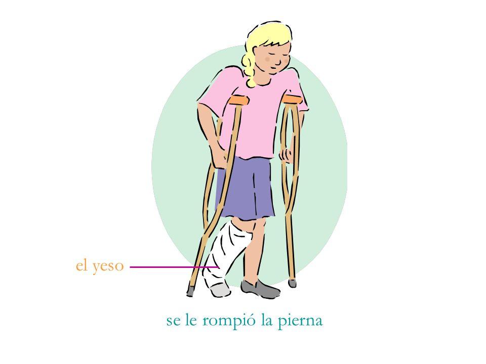 el yeso se le rompió la pierna