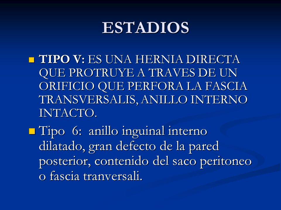 ESTADIOS TIPO V: ES UNA HERNIA DIRECTA QUE PROTRUYE A TRAVES DE UN ORIFICIO QUE PERFORA LA FASCIA TRANSVERSALIS, ANILLO INTERNO INTACTO.