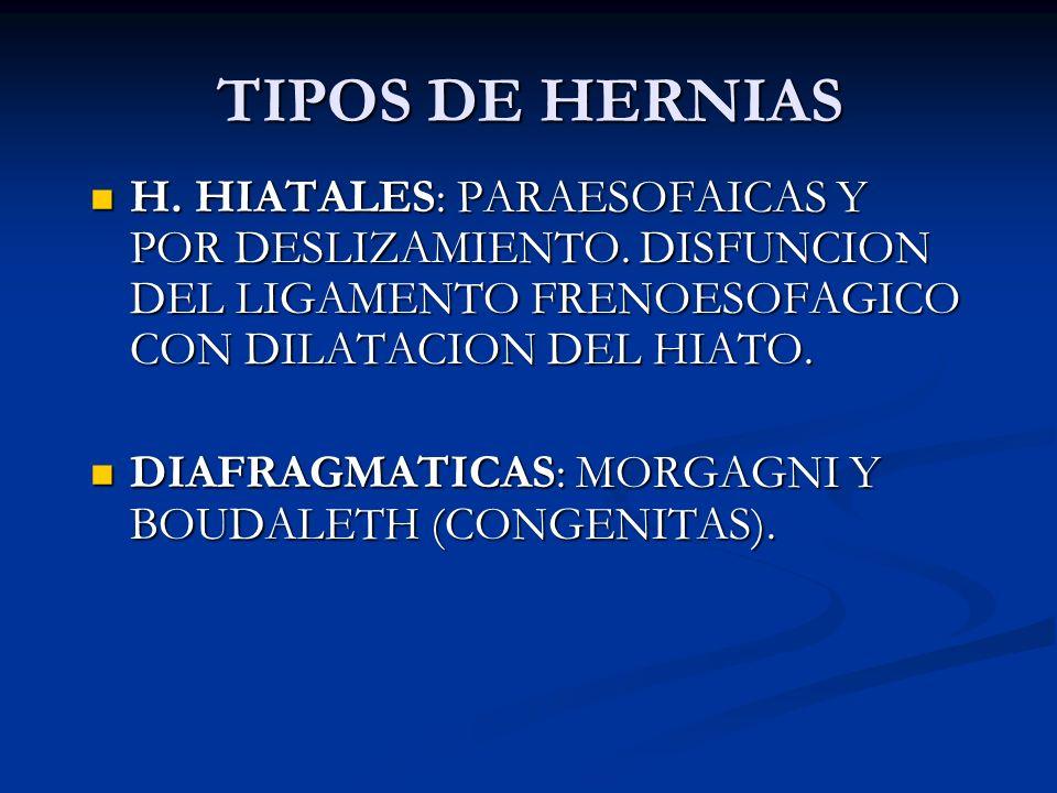 TIPOS DE HERNIAS H. HIATALES: PARAESOFAICAS Y POR DESLIZAMIENTO. DISFUNCION DEL LIGAMENTO FRENOESOFAGICO CON DILATACION DEL HIATO.