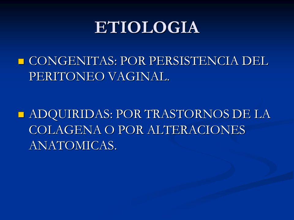 ETIOLOGIA CONGENITAS: POR PERSISTENCIA DEL PERITONEO VAGINAL.