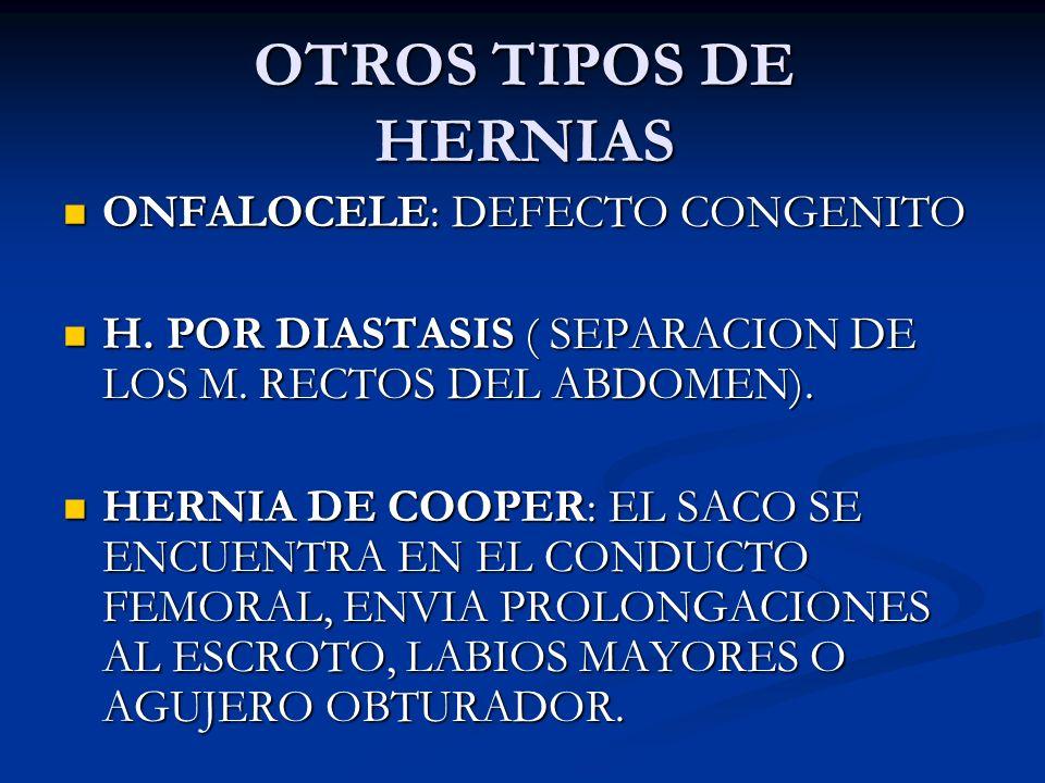 OTROS TIPOS DE HERNIAS ONFALOCELE: DEFECTO CONGENITO