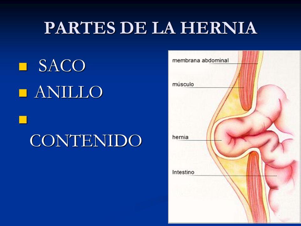 PARTES DE LA HERNIA SACO ANILLO CONTENIDO