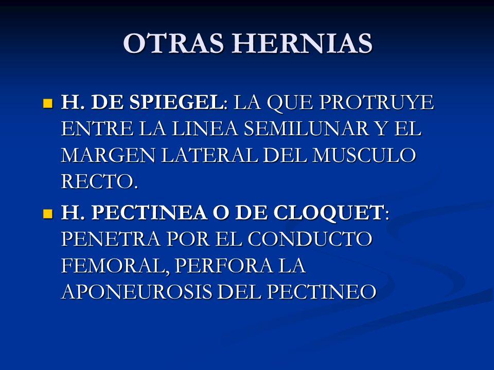 OTRAS HERNIAS H. DE SPIEGEL: LA QUE PROTRUYE ENTRE LA LINEA SEMILUNAR Y EL MARGEN LATERAL DEL MUSCULO RECTO.
