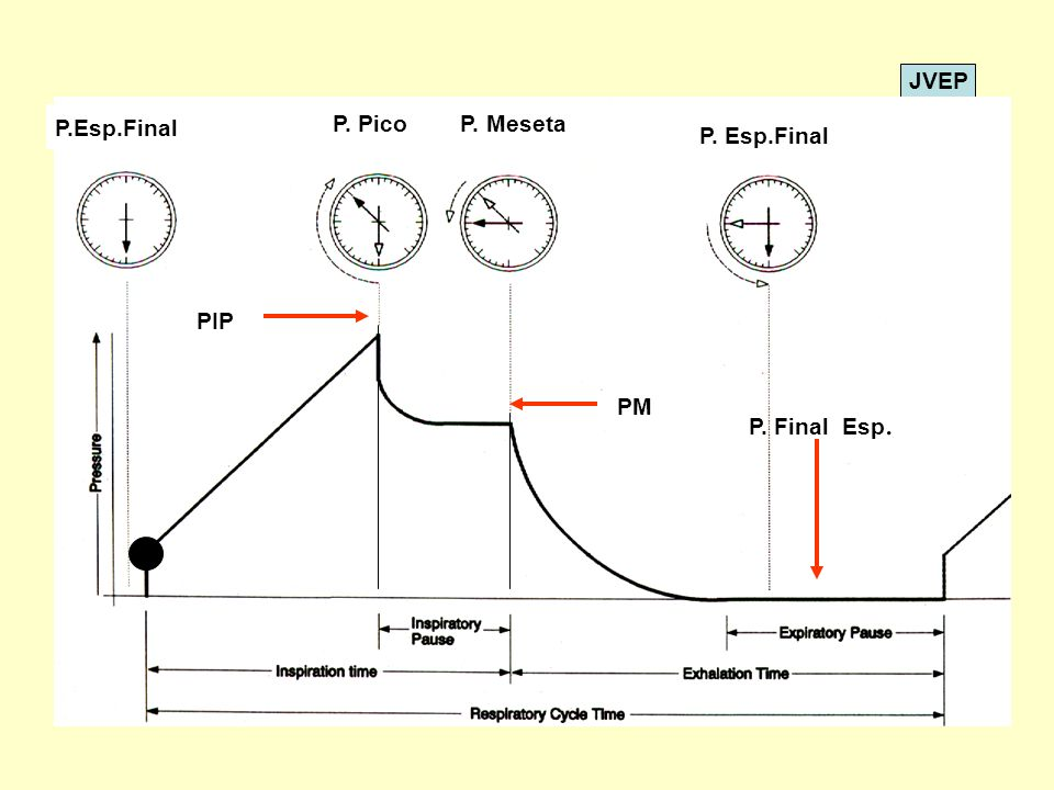 P. Pico P. Meseta P.Esp.Final P. Esp.Final PIP PM P. Final Esp.