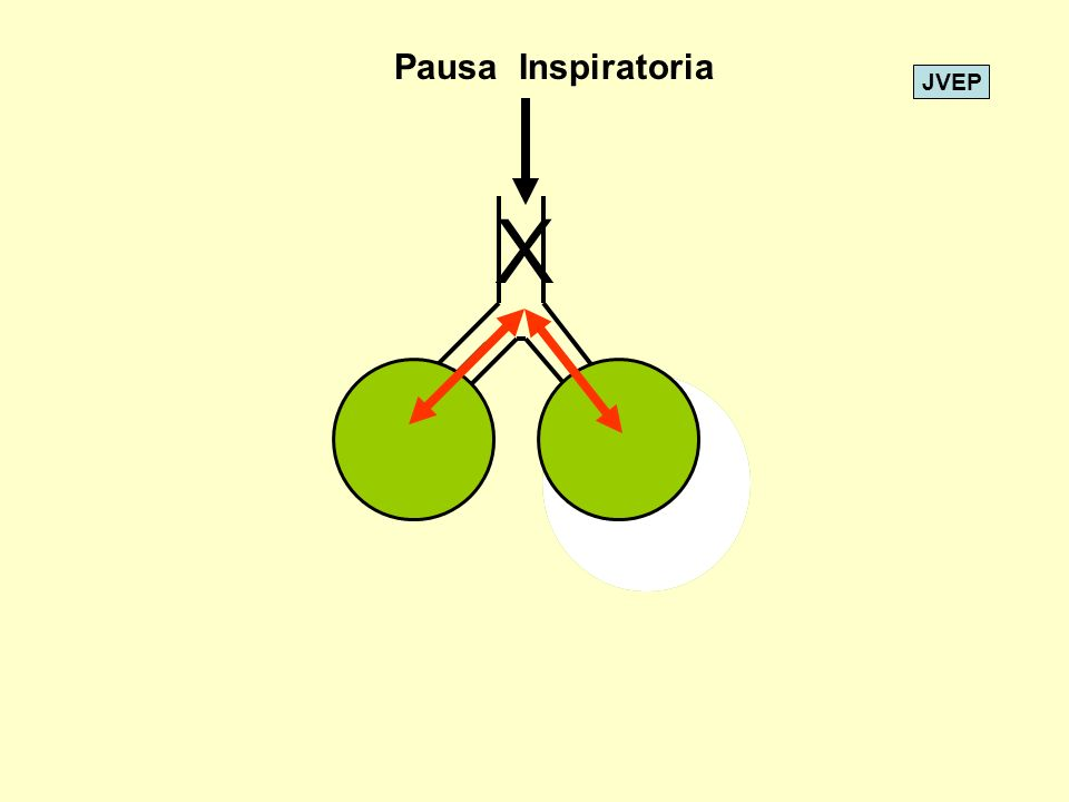 Pausa Inspiratoria X