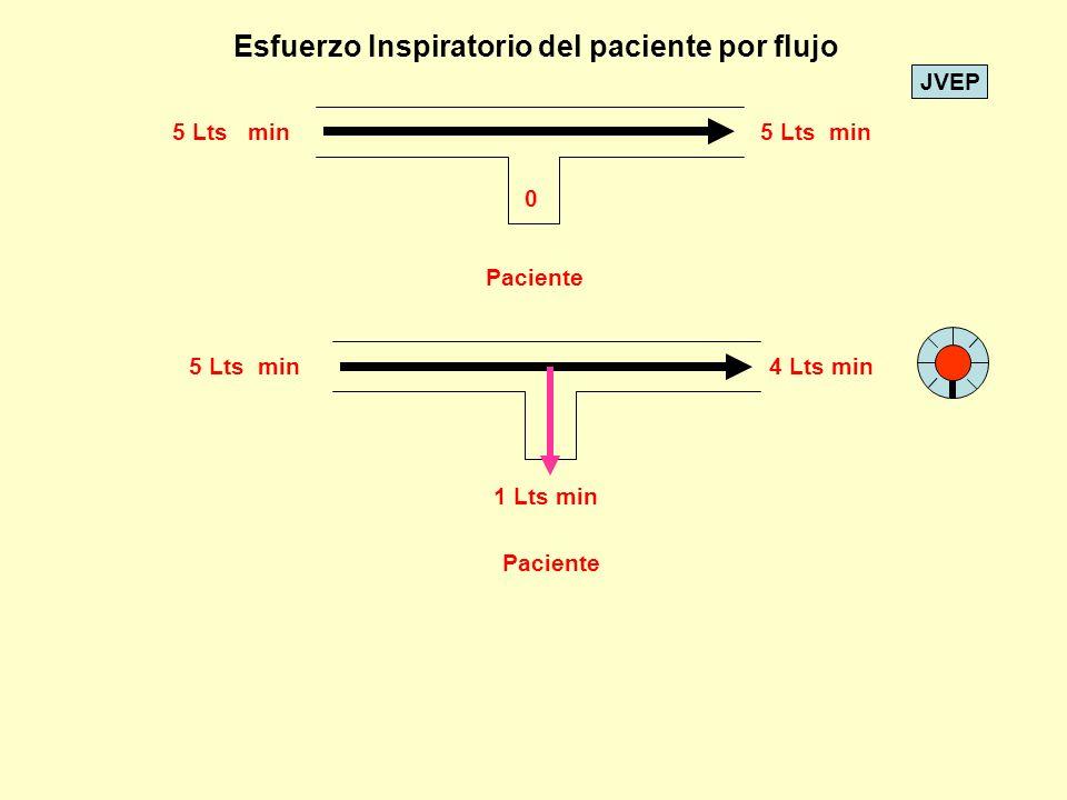 Esfuerzo Inspiratorio del paciente por flujo