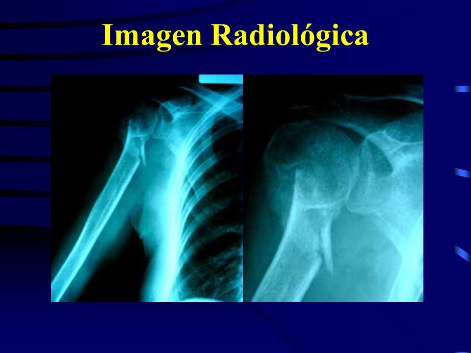 Imagen Radiológica