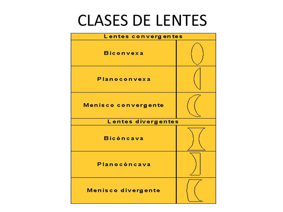 CLASES DE LENTES