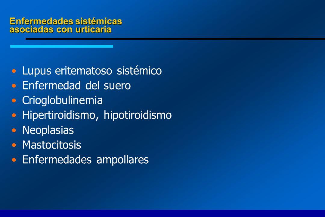 Enfermedades sistémicas asociadas con urticaria
