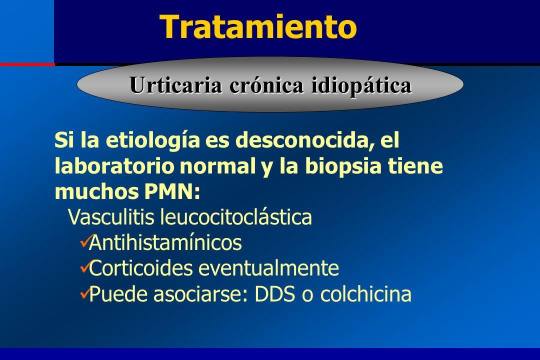 Urticaria crónica idiopática