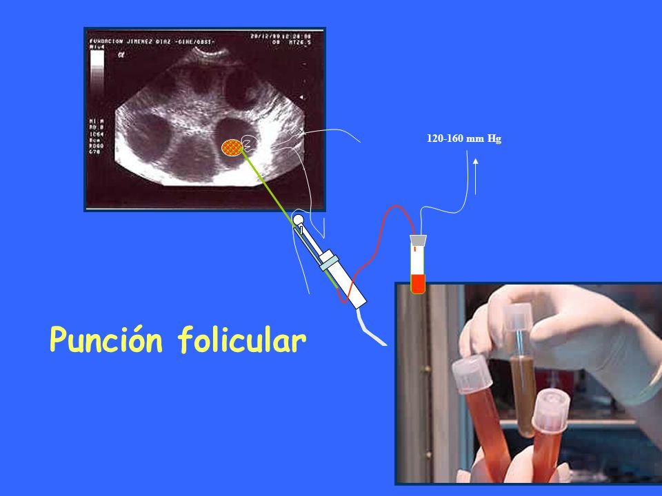 120-160 mm Hg Punción folicular