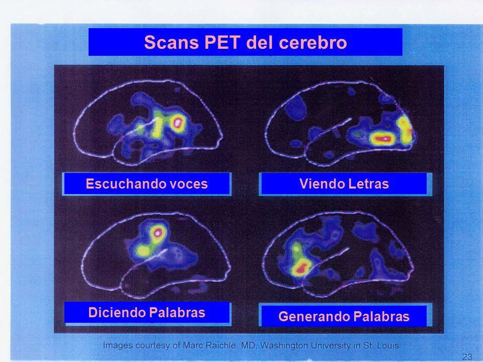 Scans PET del cerebro Escuchando voces Viendo Letras Diciendo Palabras