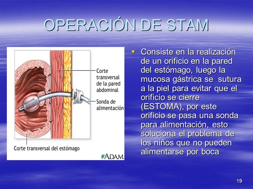 OPERACIÓN DE STAM