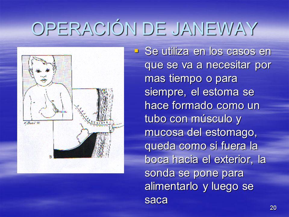 OPERACIÓN DE JANEWAY