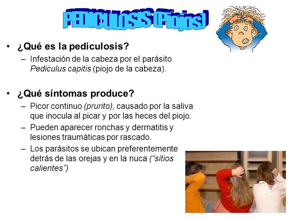 PEDICULOSIS (Piojos) ¿Qué es la pediculosis ¿Qué síntomas produce