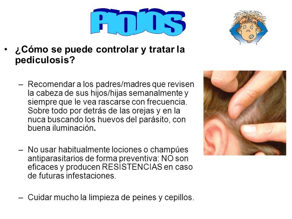 PIOJOS ¿Cómo se puede controlar y tratar la pediculosis