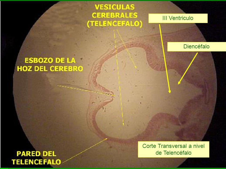 Corte Transversal a nivel de Telencéfalo