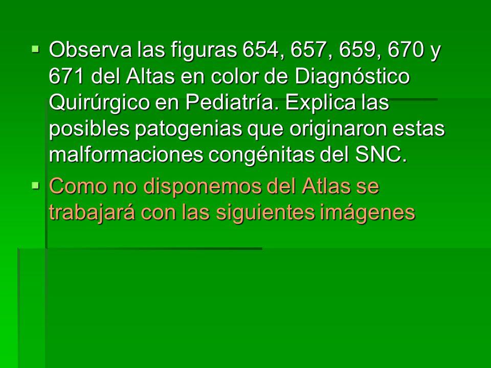 Observa las figuras 654, 657, 659, 670 y 671 del Altas en color de Diagnóstico Quirúrgico en Pediatría. Explica las posibles patogenias que originaron estas malformaciones congénitas del SNC.