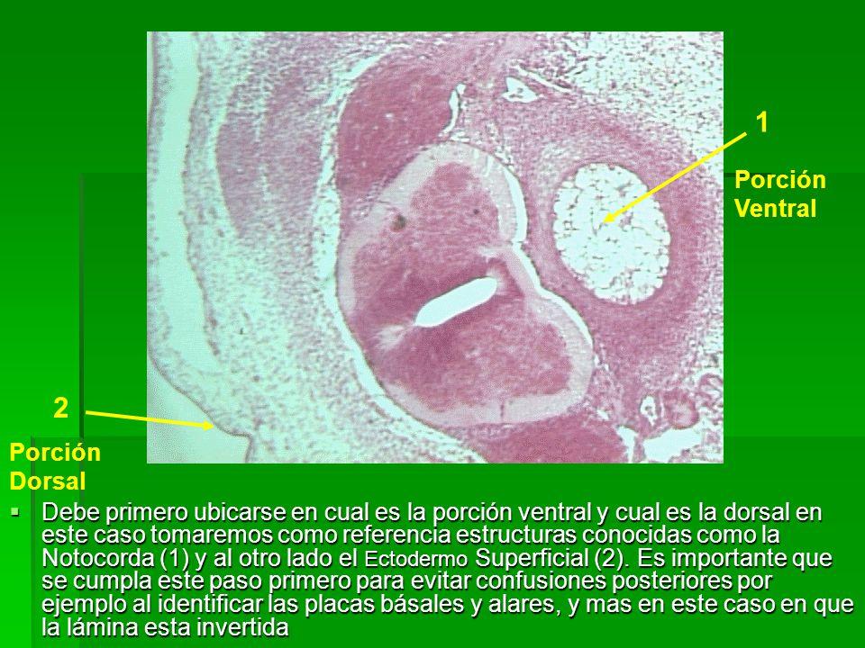 1 2 Porción Ventral Porción Dorsal