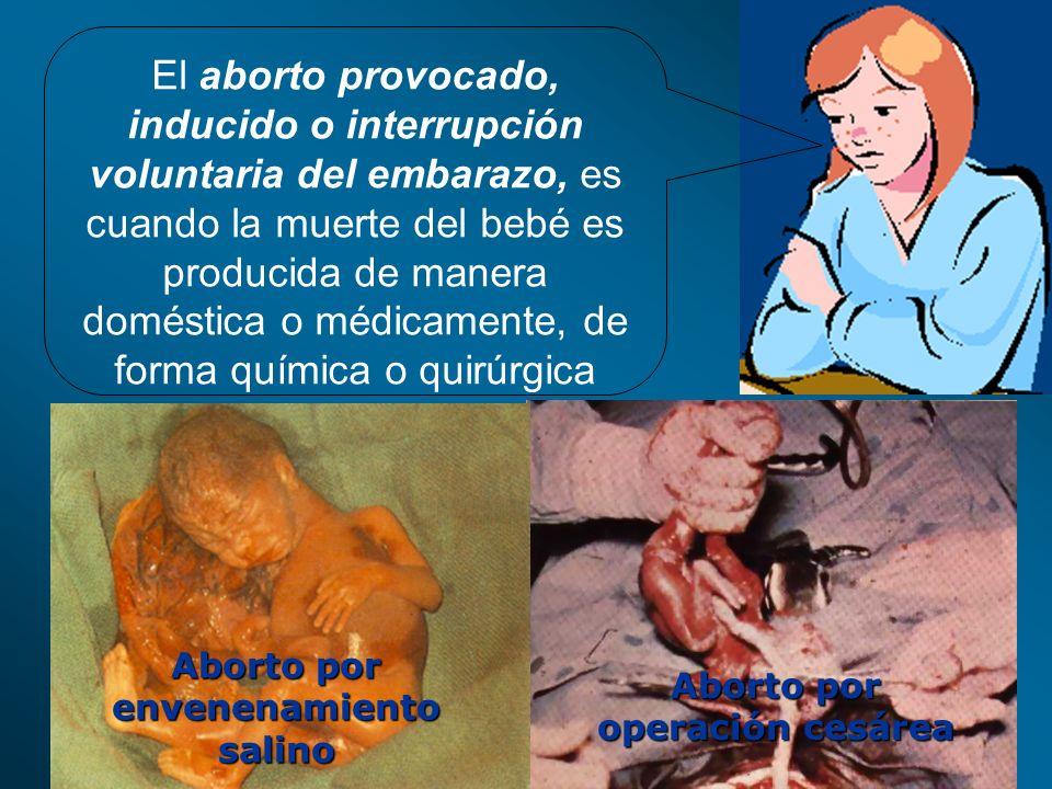 Aborto por envenenamiento salino Aborto por operación cesárea