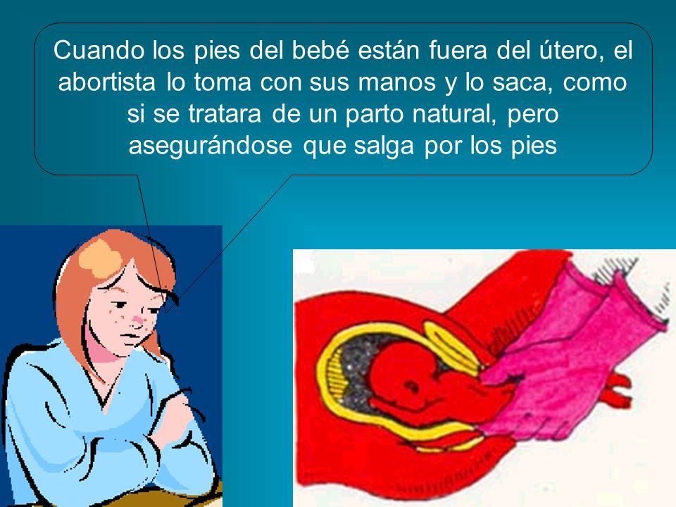 Cuando los pies del bebé están fuera del útero, el abortista lo toma con sus manos y lo saca, como si se tratara de un parto natural, pero asegurándose que salga por los pies