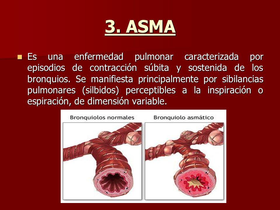 3. ASMA