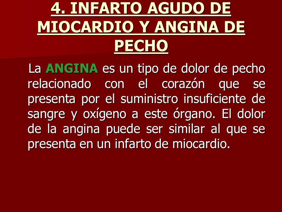 4. INFARTO AGUDO DE MIOCARDIO Y ANGINA DE PECHO