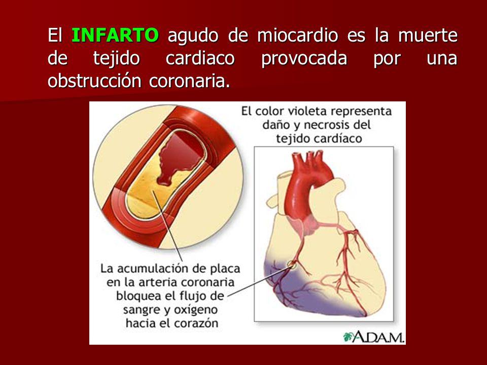 El INFARTO agudo de miocardio es la muerte de tejido cardiaco provocada por una obstrucción coronaria.