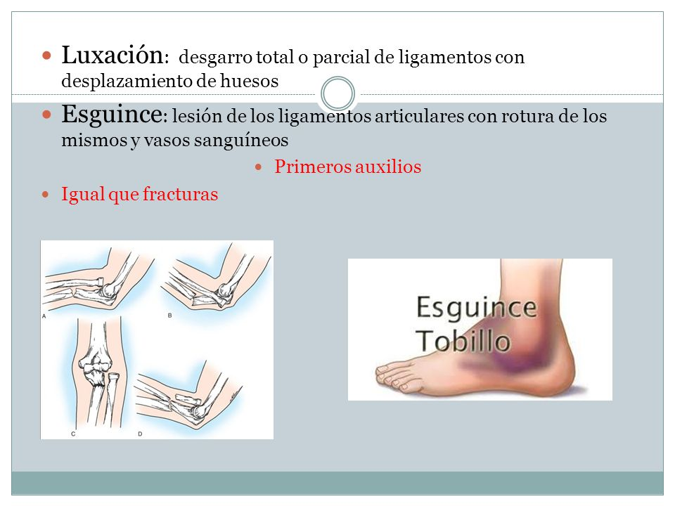 Luxación: desgarro total o parcial de ligamentos con desplazamiento de huesos