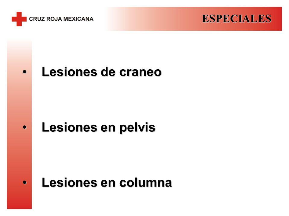 ESPECIALES Lesiones de craneo Lesiones en pelvis Lesiones en columna