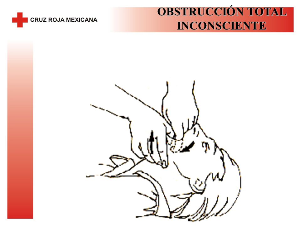 OBSTRUCCIÓN TOTAL INCONSCIENTE