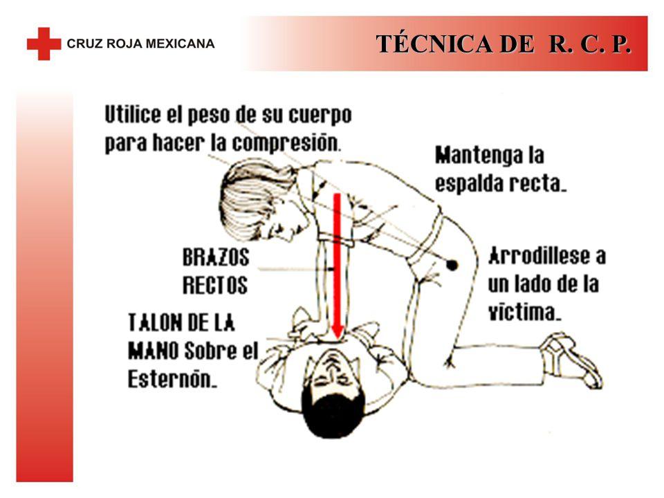 TÉCNICA DE R. C. P.