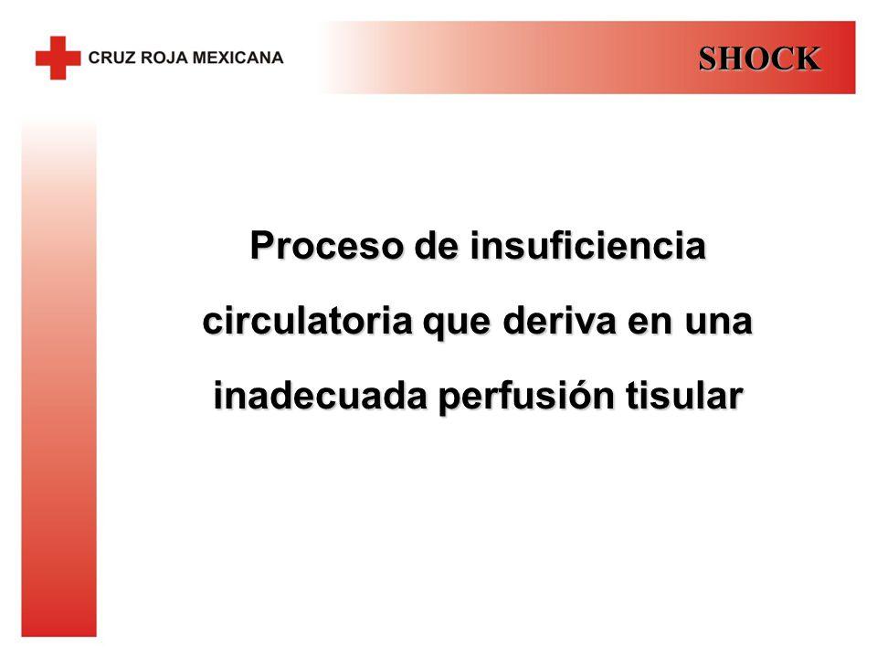 SHOCK Proceso de insuficiencia circulatoria que deriva en una inadecuada perfusión tisular