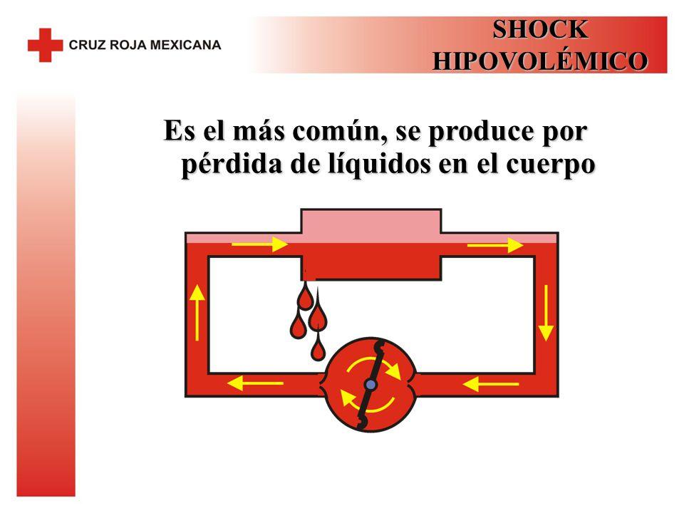 Es el más común, se produce por pérdida de líquidos en el cuerpo