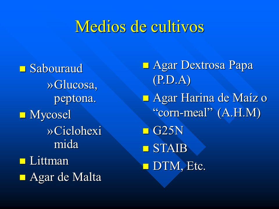 Medios de cultivos Agar Dextrosa Papa (P.D.A) Sabouraud