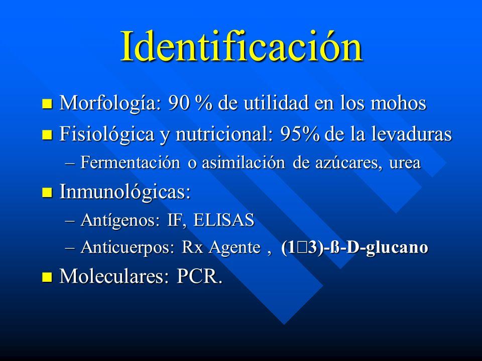 Identificación Morfología: 90 % de utilidad en los mohos