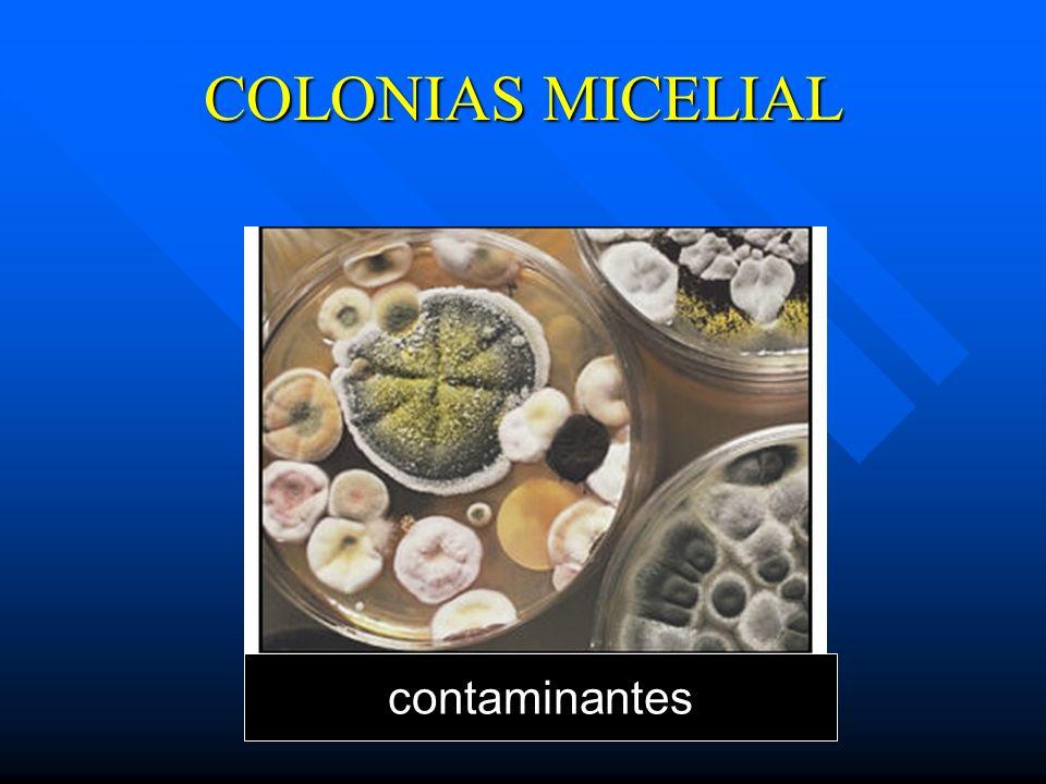 COLONIAS MICELIAL contaminantes