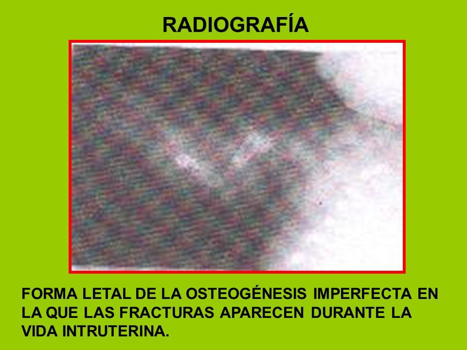 RADIOGRAFÍAFORMA LETAL DE LA OSTEOGÉNESIS IMPERFECTA EN LA QUE LAS FRACTURAS APARECEN DURANTE LA VIDA INTRUTERINA.