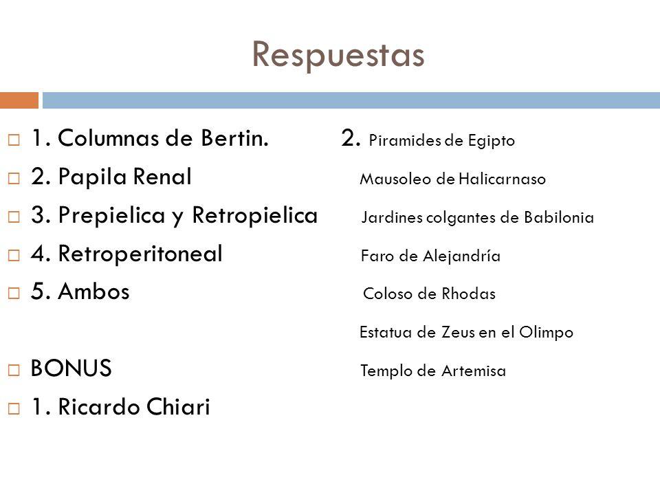 Respuestas 1. Columnas de Bertin. 2. Piramides de Egipto