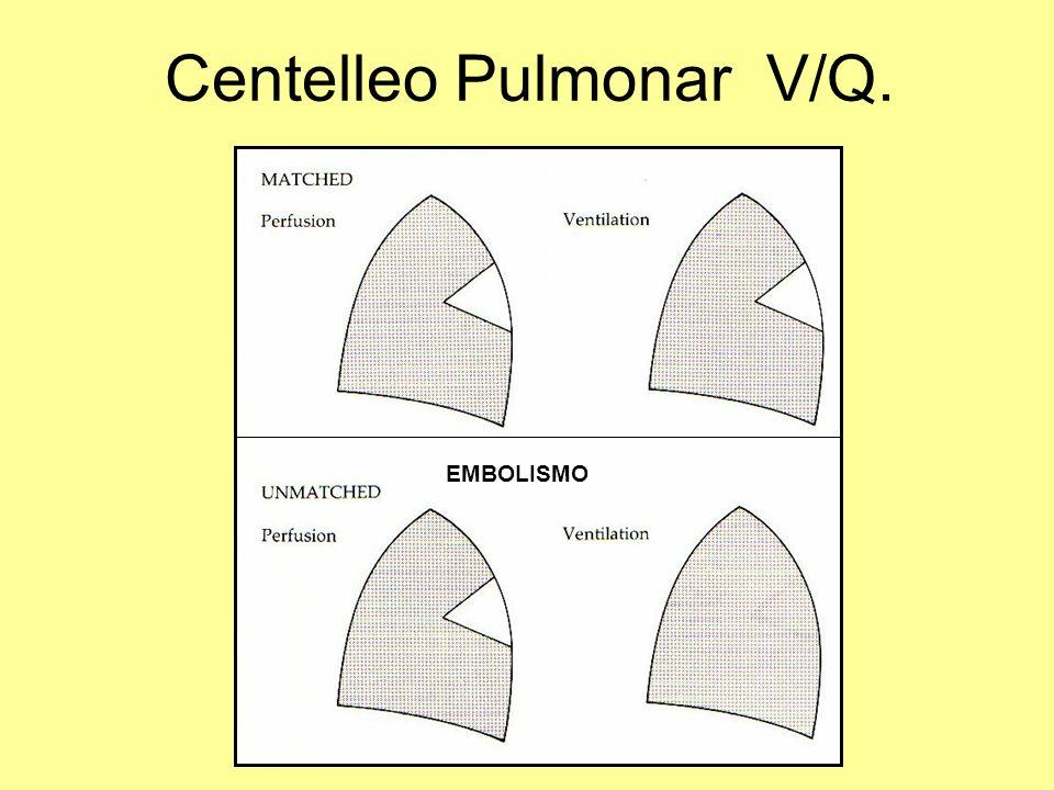 Centelleo Pulmonar V/Q.