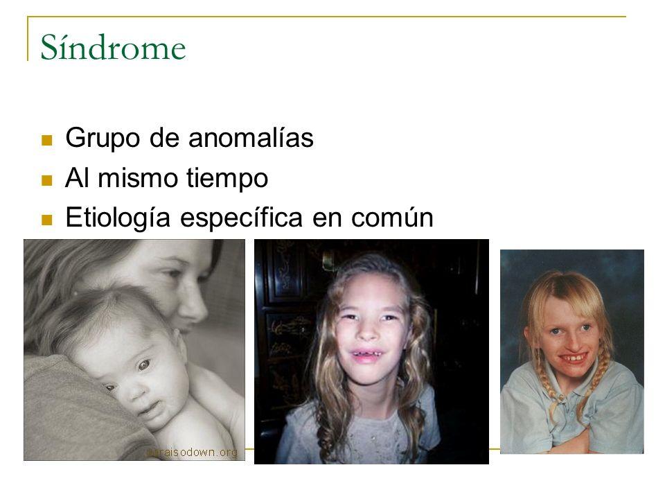 Síndrome Grupo de anomalías Al mismo tiempo