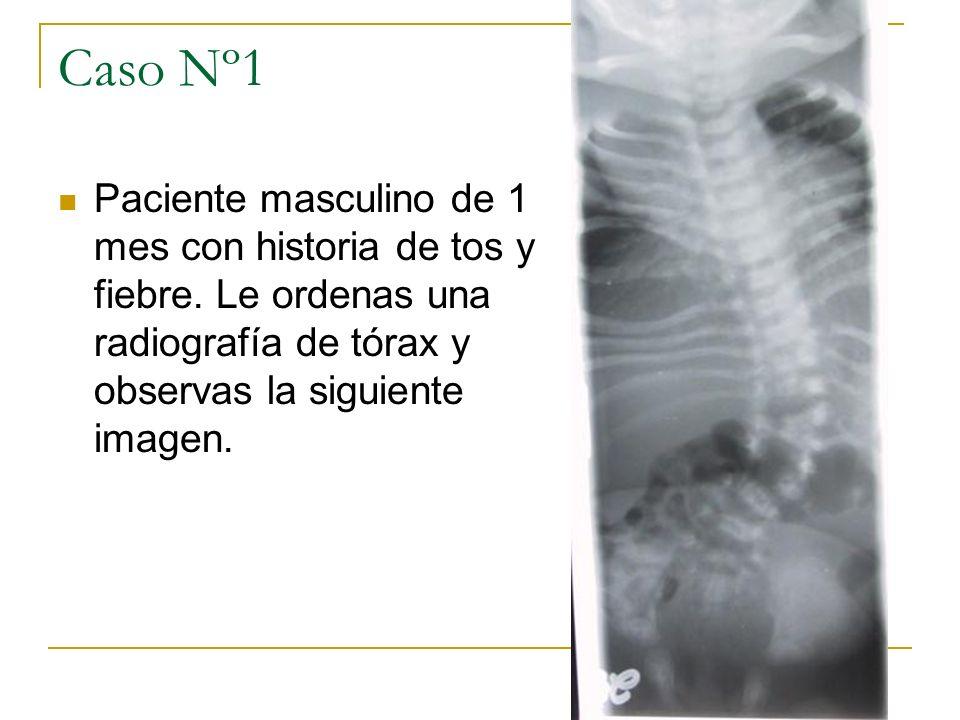 Caso Nº1Paciente masculino de 1 mes con historia de tos y fiebre. Le ordenas una radiografía de tórax y observas la siguiente imagen.