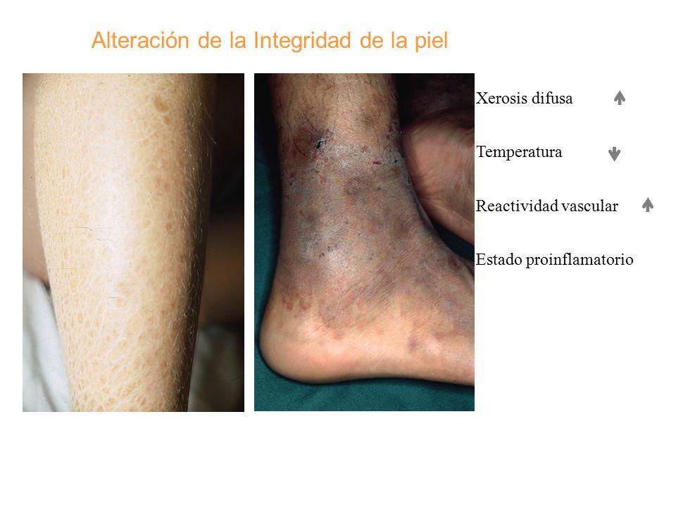 Alteración de la Integridad de la piel