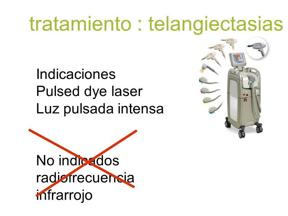 tratamiento : telangiectasias
