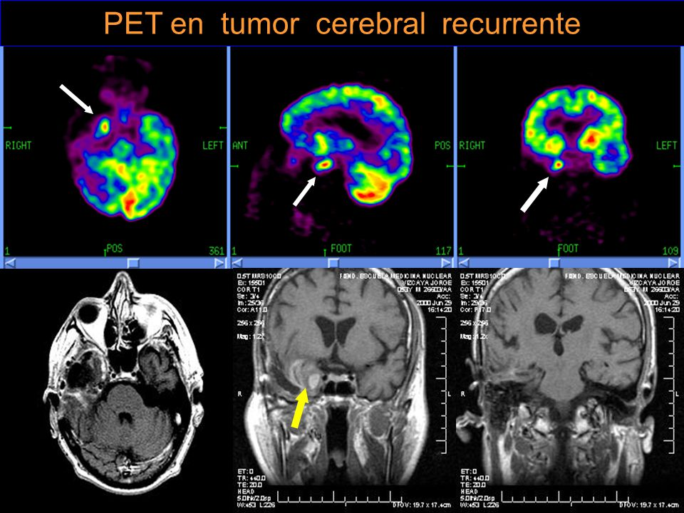 PET en tumor cerebral recurrente
