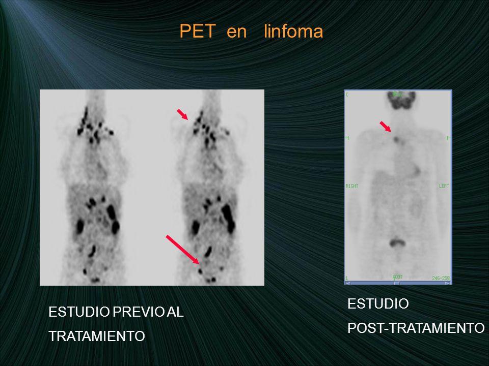 PET en linfoma ESTUDIO POST-TRATAMIENTO ESTUDIO PREVIO AL TRATAMIENTO